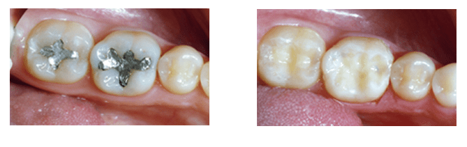 Tooth-colored fillings are a discrete way to restore cavities