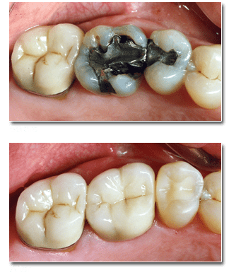 Dental crowns and bridges restore teeth after a root canal procedure or tooth extraction