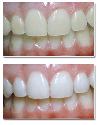 Dr. Pape offers various teeth whitening procedures at our Orland Park Dental Clinic to brighten patients' smiles